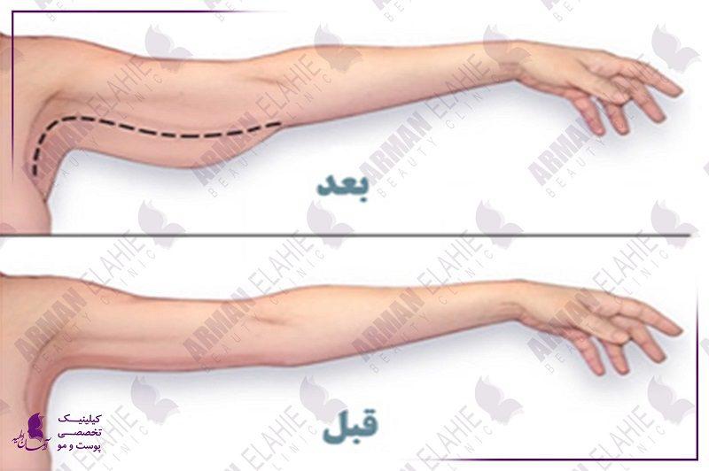 جراحی بازو