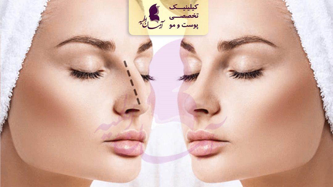 زیبائی بینی بدون جراحی