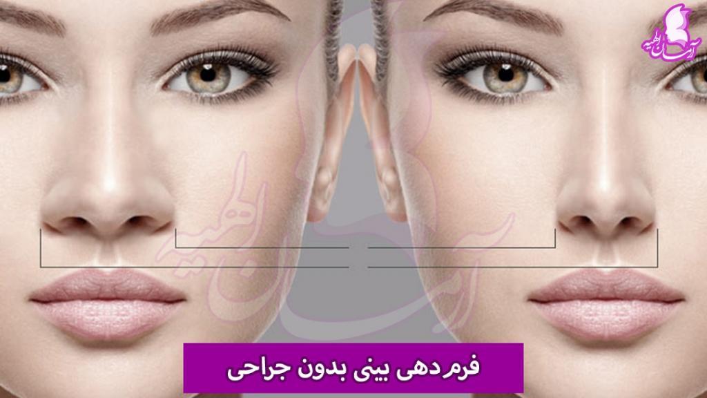 فرم دهی بینی بدون جراحی چگونه ممکن است؟
