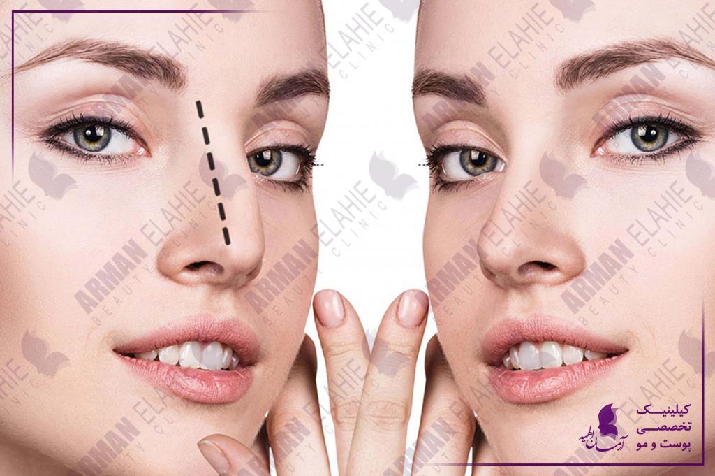 رفع قوز بینی با تزریق ژل