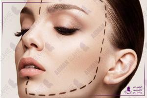 زاویه سازی فک و صورت چیست و با چه روش هایی انجام میشود