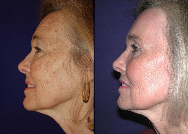 متخصص پوست و زیبایی