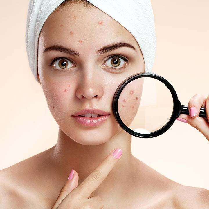شایع ترین مشکل پوستی مشترک بین افراد