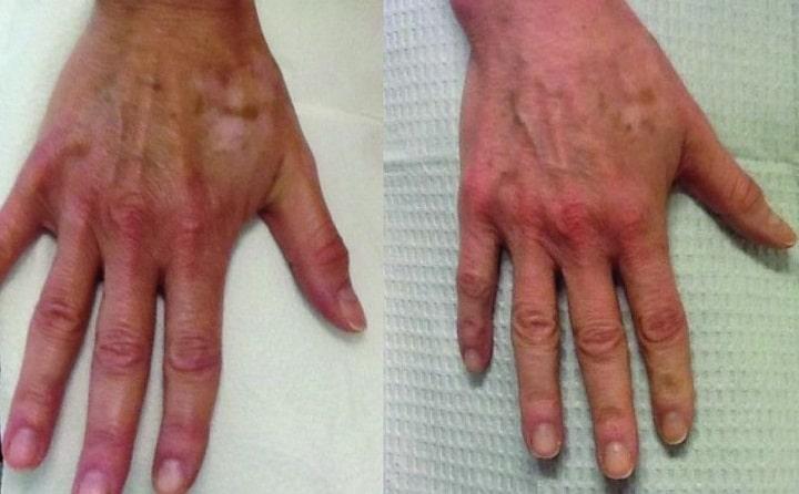 تعدادی دیگر از جدید ترین دستگاه های جوانسازی پوست