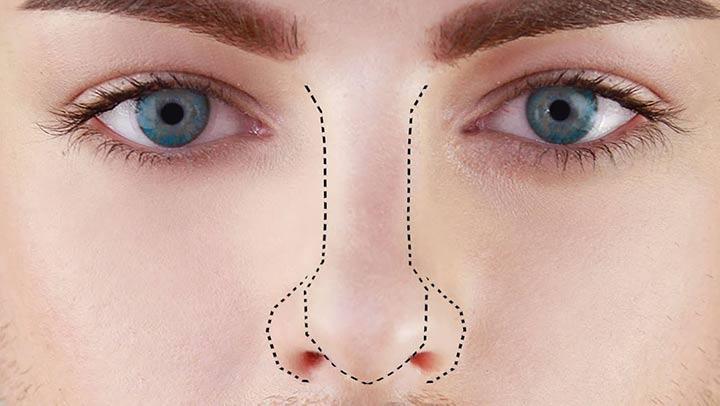 روش کار لیفت بینی با دستگاه پلاسما جت چیه؟