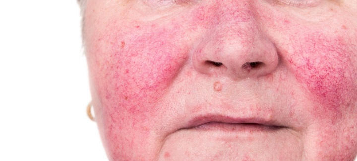 درمان ضایعات عروقی با دستگاه چگونه انجام می شود؟