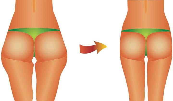 تقویت باسن و لاغری ران اصولی و استاندارد