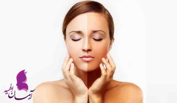 عرق برای پوست و مو