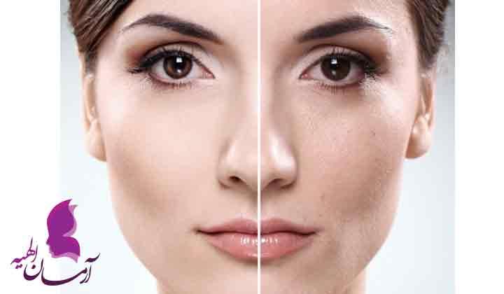 عرقیات مفید برای پوست و مو