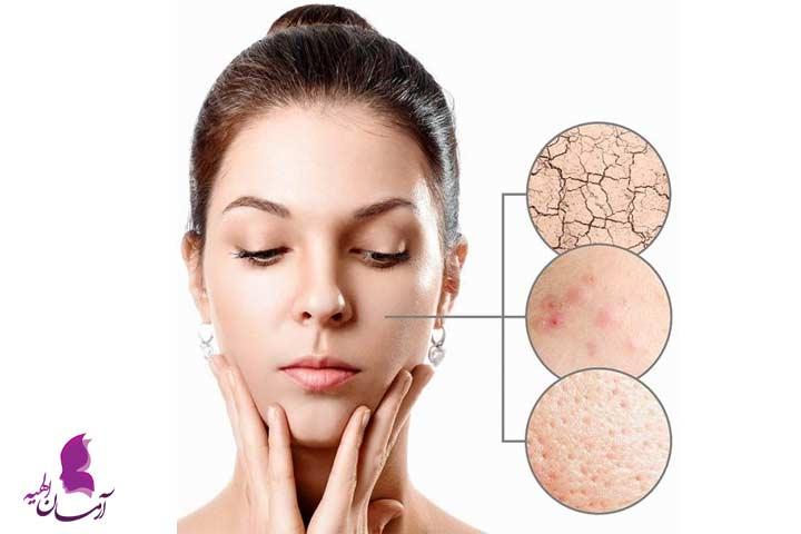 راه های جلوگیری از خرابی پوست صورت