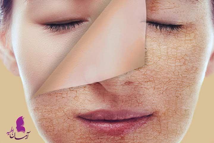 علت زشت شدن چهره در دوران بلوغ