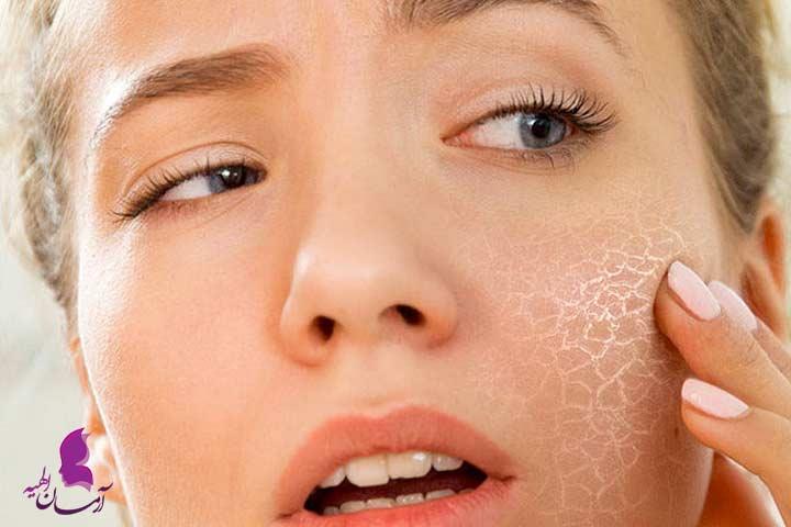 برای لطیف شدن پوست صورت چه چیز هایی مناسب است