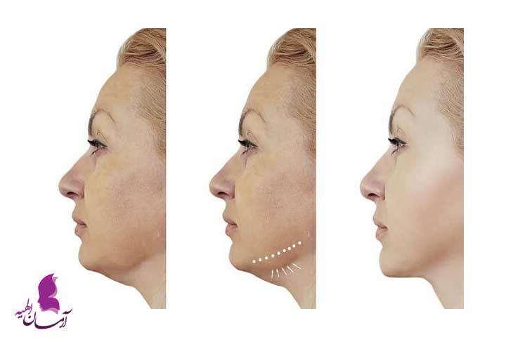 عکس های قبل و بعد از لیفت با نخ