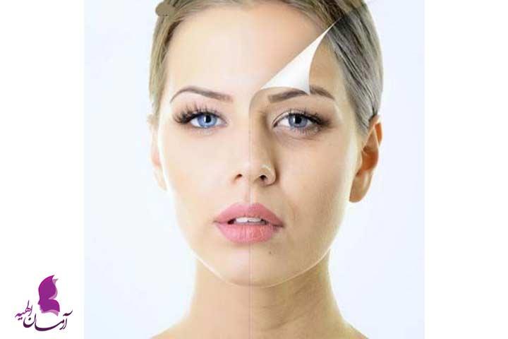 چطور از خراب شدن پوست جلوگیری کنیم؟