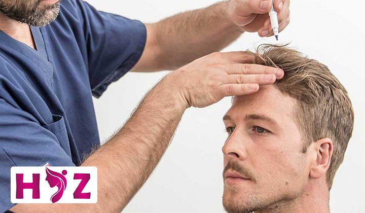 طریقه مصرف ماینوکسیدیل برای مو